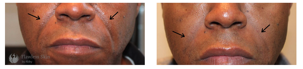 Men's Facial Filler from Flawless Skin by Abby in Abuja