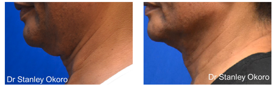 Men's Double Chin Reduction in Abuja