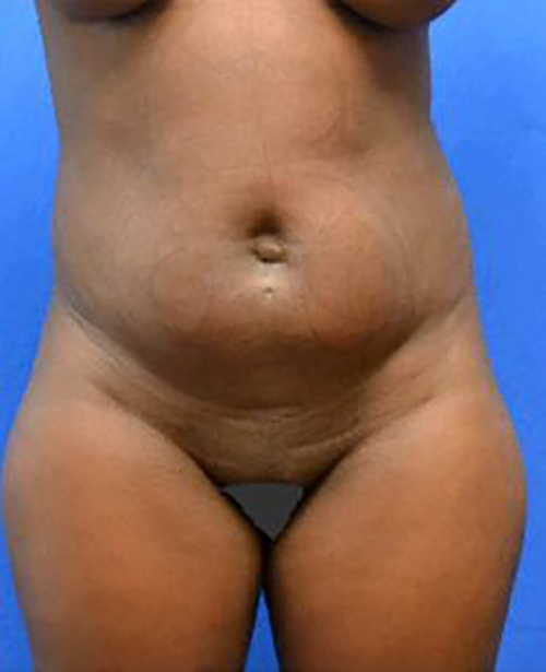 Liposuction Nigeria, Liposuction Abuja