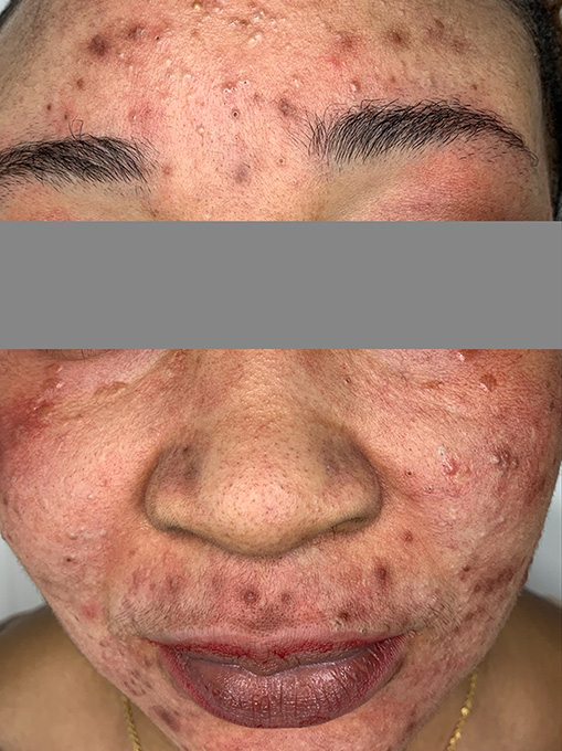 Microneedling With Prp Before and After | Flawless Skin